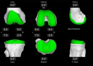 Olympia Orthopaedic Mako Robotic joint replacement 3D_planning